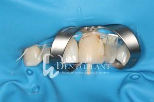 dentoplant-eset-1-3