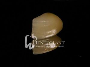 dentoplant-eset-1-6