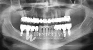 Elkészült alsó implantátumos hidak
