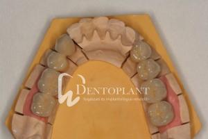 dentoplant-eset-10-4