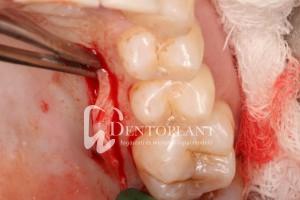 dentoplant-eset-3-4