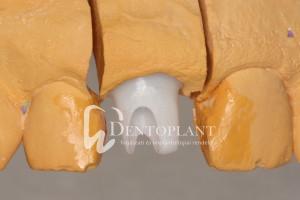 dentoplant-eset-3-8