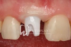 dentoplant-eset-3-9