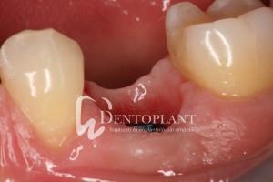 dentoplant-eset-4-13