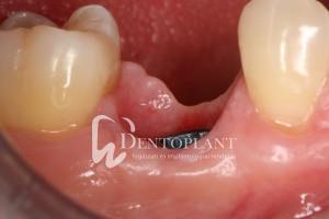 dentoplant-eset-4-14
