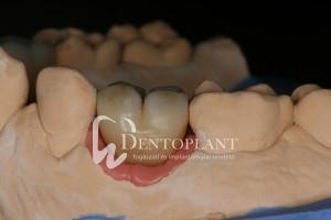 dentoplant-eset-4-8