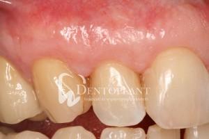dentoplant-eset-5-10