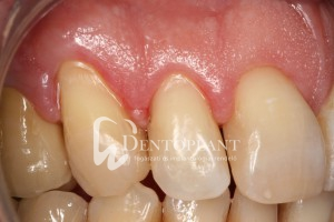 dentoplant-eset-5-3