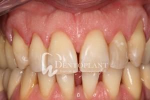 dentoplant-eset-5-4