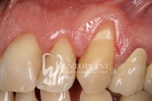 dentoplant-eset-5-5