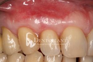 dentoplant-eset-5-7