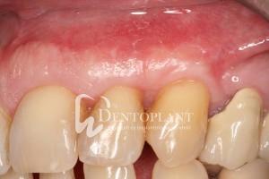 dentoplant-eset-5-9