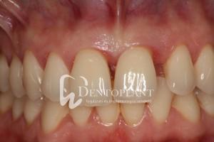 Kezelés előtt - lokális agresszív fogágybetegség során elmozdult bal felső nagymetszőfog