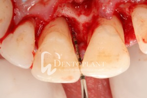 A műtéti feltárás során jól látható fogágypusztulás