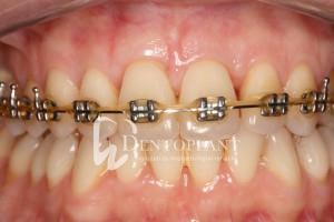 A komplex kezelés részeként a műtét után 6 hónappal indult a fogszabályozó kezelés