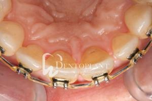 A fogszabályzás eredményeképpen a fogív visszanyeri eredeti formáját
