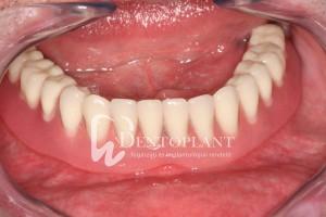 Az elkészült fogsor