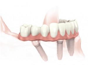 All-on-4™ -  a Nobel® cég ajánlása, melynek során négy speciálisan behelyezett implantátumra készíthető fix kerámia híd