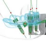 nobel-implantatum5