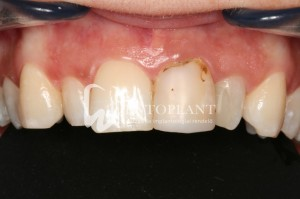 Dentoplant case presentation: Aesthetic eMax pressed ceramic crown - before