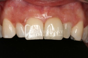Dentoplant case presentation: Aesthetic eMax pressed ceramic crown - after
