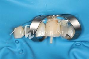 dentoplant-case-1-3-1024x682