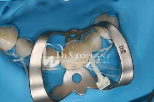dentoplant-case-1-4-1024x682
