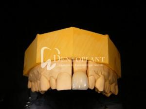 dentoplant-case-1-5-1024x768