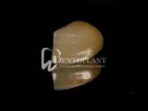 dentoplant-case-1-6-1024x768