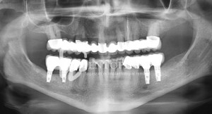 Bilateral functional rehabilitation with implants - Mandibular implant supported bridges - Dentoplant case
