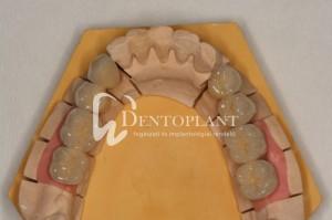 dentoplant-case-10-4-1024x682