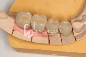 dentoplant-case-10-5-1024x682