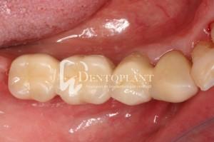 dentoplant-case-10-6-1024x682