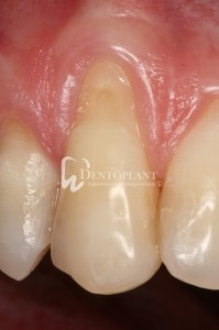 Single gingival recession surgery - before - Dentoplant case