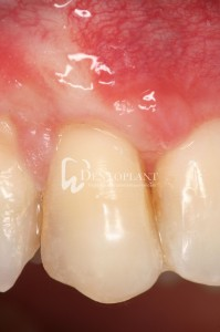 Single gingival recession surgery 1 year after surgery - Dentoplant case