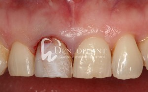 Right upper incisor damaged in an accident before treatment - Dentoplant case