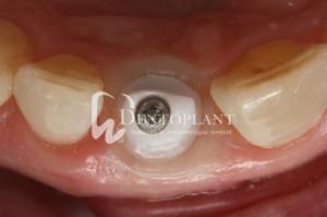 dentoplant-case-3-10-1024x682