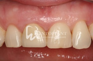 Right upper incisor damaged in an accident after treatment