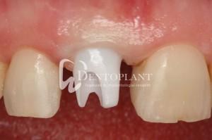 dentoplant-case-3-9-1024x682