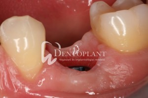 dentoplant-case-4-13-1024x682