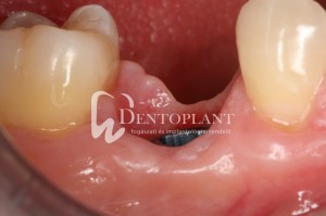dentoplant-case-4-14-1024x682