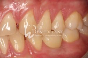 dentoplant-case-4-16-1024x682