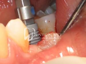 dentoplant-case-4-4-1024x768