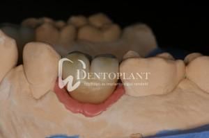 dentoplant-case-4-8-1024x682