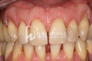 Multiple gingival recession treatment with tunnel technique and free palatal conective tissue graft - before - Dentoplant case