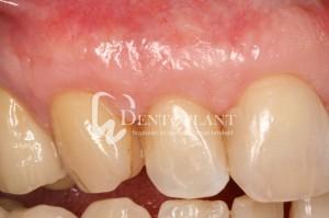 dentoplant-case-5-10-1024x682