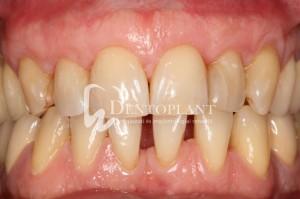 dentoplant-case-5-11-1024x682