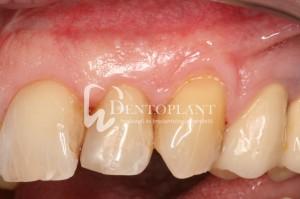 dentoplant-case-5-12-1024x682