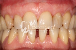 Multiple gingival recession treatment with tunnel technique and free palatal conective tissue graft - after - Dentoplant case