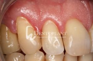 dentoplant-case-5-3-1024x682